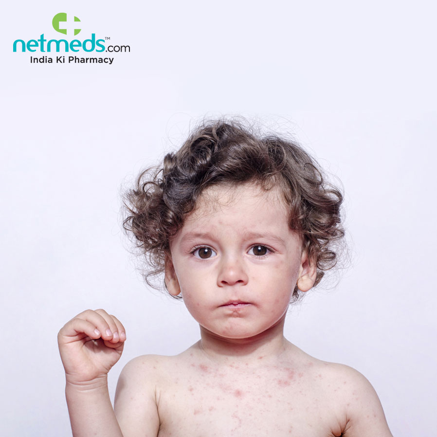 Atopic Dermatitis affects kids at an early age