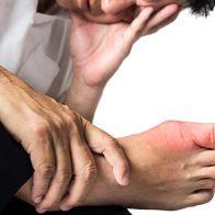 Febuxostat: Treating Gout Effectively