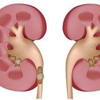 Kidney Disease: Signs & Symptoms
