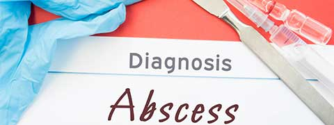 Abscess - Causes, Symptoms and Diagnosis