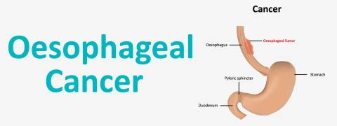 Oesophageal Cancer: Causes, Symptoms and Treatment
