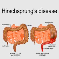 Hirschsprung Disease: Causes, Symptoms And Treatment