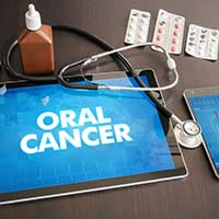 Oral Cancer: Causes, Symptoms And Treatment