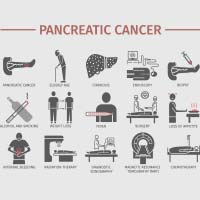 Pancreatic Cancer: Causes, Symptoms And Treatment