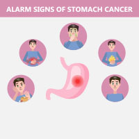 Gastric Cancer: Causes, Symptoms and Treatment