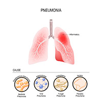 Pneumonia: Know About The Types And The Various Treatment Options
