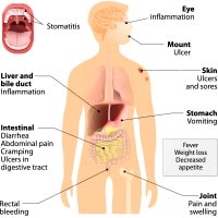 Crohn's Disease: Causes, Symptoms And Treatment