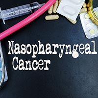 Nasopharyngeal Cancer: Causes, Symptoms And Treatment