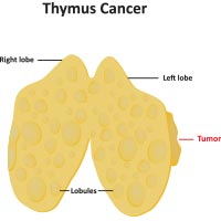 Thymus Cancer: Causes, Symptoms And Treatment