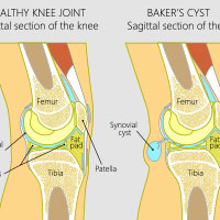 Baker's Cyst: Causes, Symptoms And Treatment
