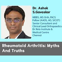 Rheumatoid Arthritis: Myths And Truths