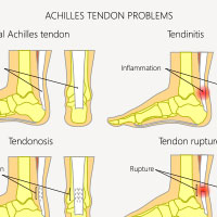 Tendinitis: Causes, Symptoms And Treatment