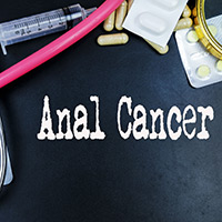 Anal Cancer: Causes, Symptoms And Treatment