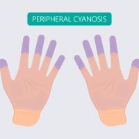 Peripheral Cyanosis: Causes, Symptoms And Treatment