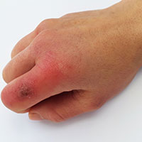 Chilblains: Causes, Symptoms And Treatment