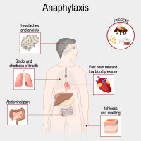 Anaphylaxis: Causes, Symptoms And Treatment