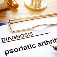 Psoriatic Arthritis: Causes, Symptoms And Treatment