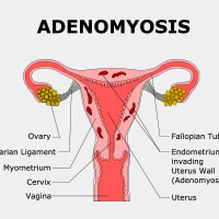 Adenomyosis: Causes, Symptoms And Treatment