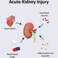 Acute Kidney Failure: Causes, Symptoms And Treatment