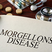 Morgellons Disease: Causes, Symptoms And Treatment