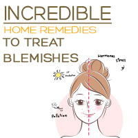 Blemishes: 5 Kitchen Ingredients To Get Rid Of Those Annoying Spots – Infographic