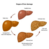 Hepatic Cirrhosis: Causes, Symptoms And Treatment
