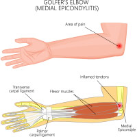 Golfer's Elbow: Causes, Symptoms And Treatment