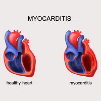 Myocarditis: Causes, Symptoms And Treatment