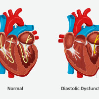 Heart Failure: Symptoms, Causes, Types And Treatment