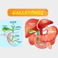 Gallstones: Symptoms, Causes And Treatment