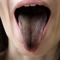 Black Hairy Tongue: Causes, Symptoms And Treatment