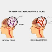 Stroke/Cerebrovascular Accident: Causes, Symptoms And Treatment