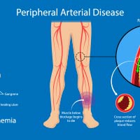 Peripheral Artery Disease: Causes, Symptoms And Treatment