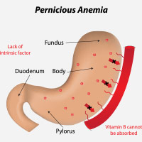Pernicious Anaemia: Causes, Symptoms And Treatment