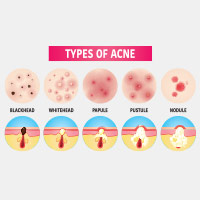 Types Of Acne: Know The Difference Between Blackheads, Whiteheads, Nodules And Cysts