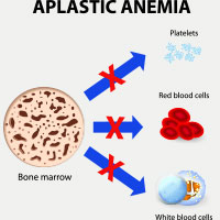 Aplastic Anaemia: Causes, Symptoms And Treatment