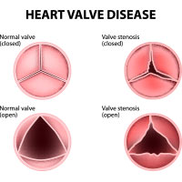 Heart Valve Disease: Causes, Symptoms And Treatment