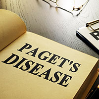 Paget's Disease Of Bone: Causes, Symptoms And Treatment