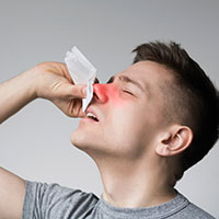 Nosebleeds/Epistaxis: Causes, Symptoms And Treatment
