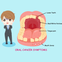 Floor Of The Mouth Cancer: Causes, Symptoms And Treatment