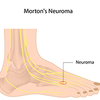Morton's Neuroma: Causes, Symptoms And Treatment