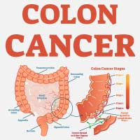 Colon Cancer: Causes, Symptoms And Treatment