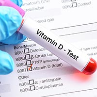 Vitamin D Test: What Is It And Why Is It Done