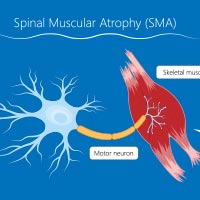 Spinal Muscular Atrophy: Causes, Symptoms Of This Genetic Disorder With World's Most Expensive Drug