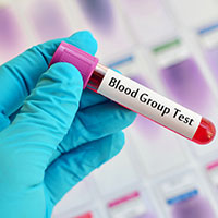 Blood Typing Test: What Is It And What To Expect?