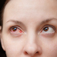 COVID-19 And Conjunctivitis: Understanding How Coronavirus Infection Induces Pink Eye