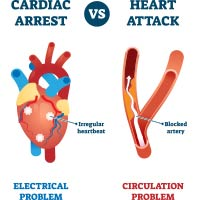 Cardiac Arrest: Causes, Symptoms And Treatment