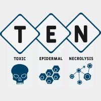 Toxic Epidermal Necrolysis (TEN): Causes, Symptoms And Treatment