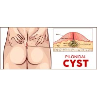 Pilonidal Cyst: Causes, Symptoms And Treatment