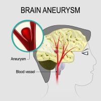 Brain Aneurysm: Causes, Symptoms And Treatment